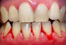 chảy máu chân răng
