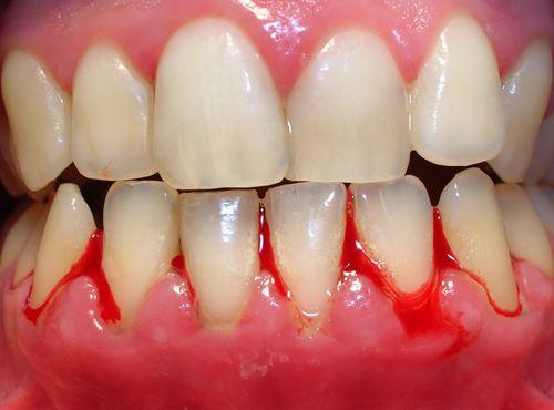 Bà bầu bị sưng nướu răng