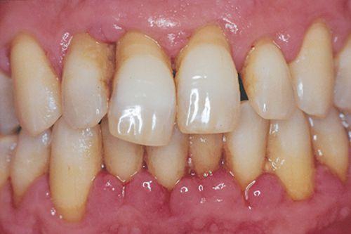 bị viêm chân răng