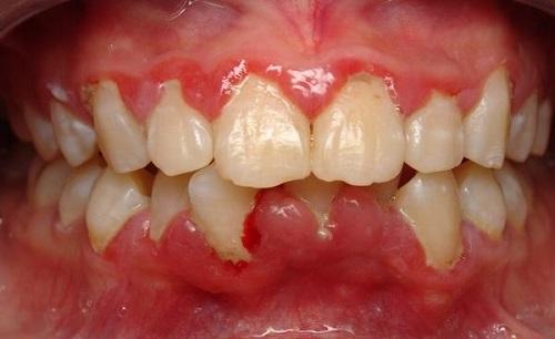bị viêm chân răng 2
