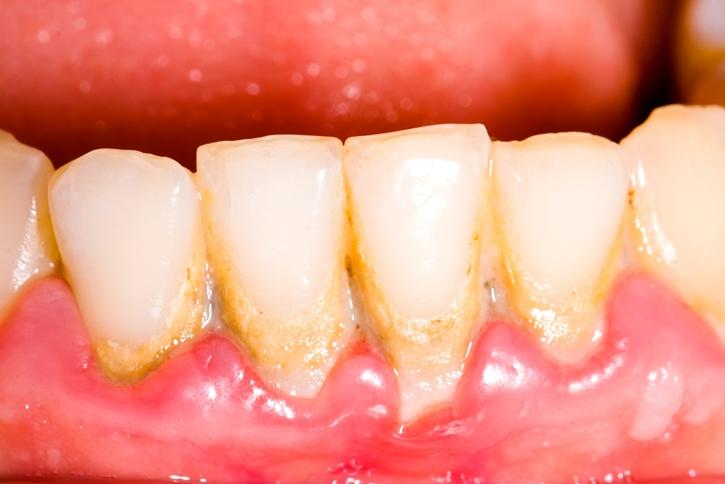 lấy cao răng có đau không