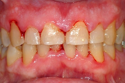 cao răng quá nhiều 2