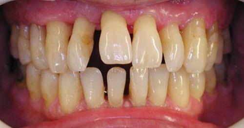 chảy máu nướu răng 3