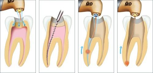 chảy máu nướu răng 6