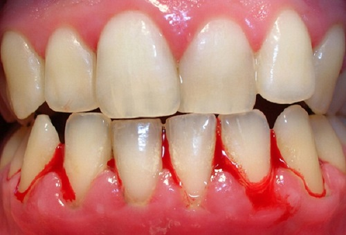 chảy máu răng là bệnh gì