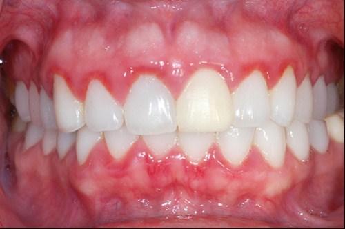 đánh răng bị chảy máu 3