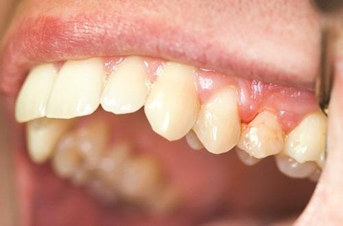 hay chảy máu chân răng 2