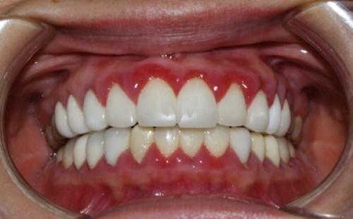 hay chảy máu chân răng 4