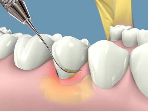 hay chảy máu chân răng 5