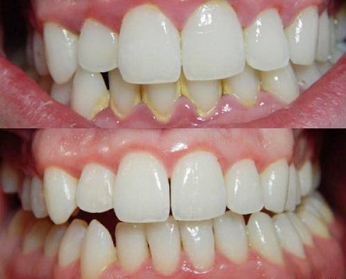 lấy cao răng có làm trắng răng không 2
