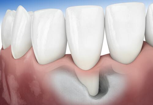 lấy cao răng định kỳ 2