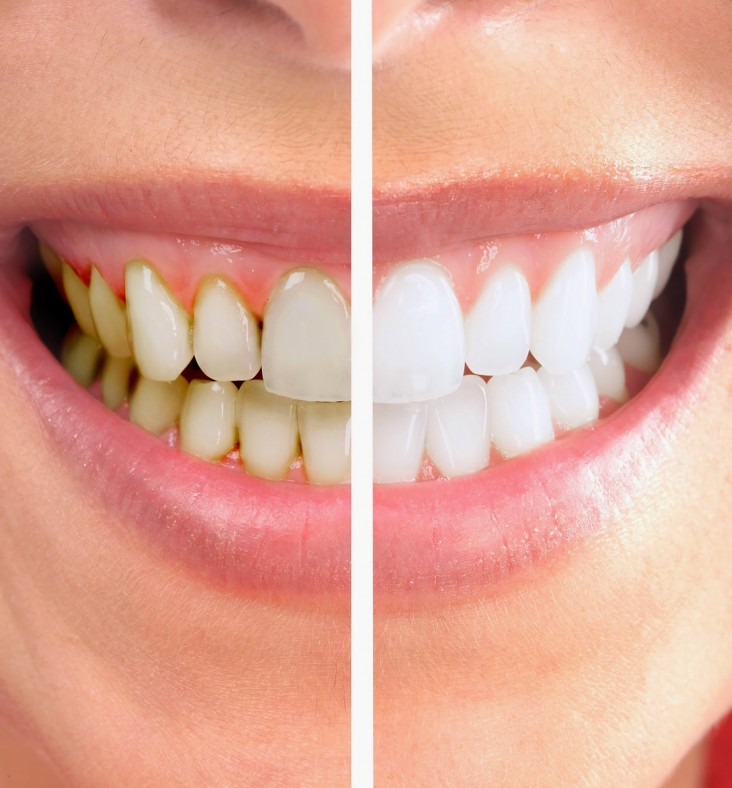 lấy cao răng mất bao nhiêu thời gian 3