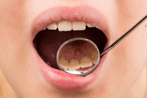nguyên nhân hình thành vôi răng