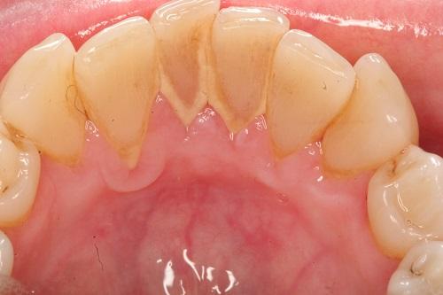 tác hại của vôi răng 2