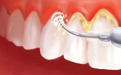 tác hại của vôi răng 4