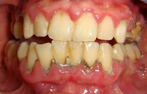 tụt lợi chân răng 2