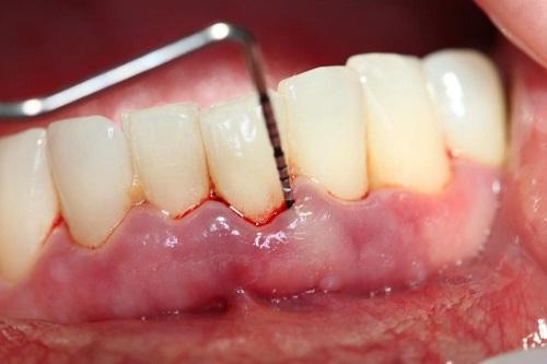 tụt lợi chân răng 4