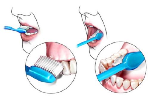 nguyên nhân chảy máu chân răng 2