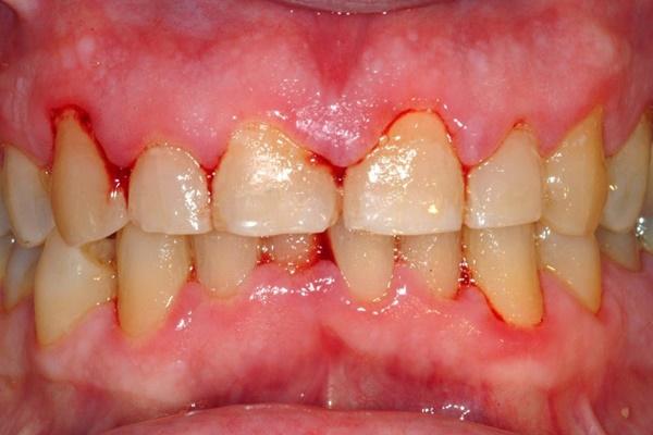 Tự nhiên chảy máu chân răng 1