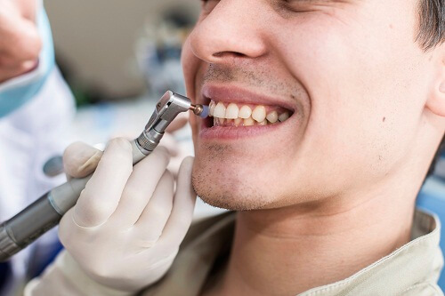 Tự nhiên chảy máu chân răng 2