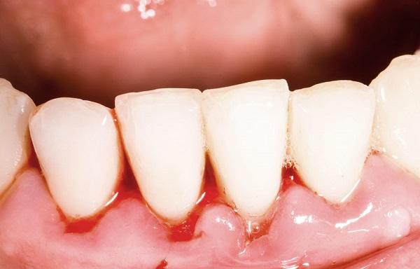 cách chữa cháy máu chân răng