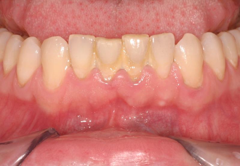 chi phí lấy vôi răng