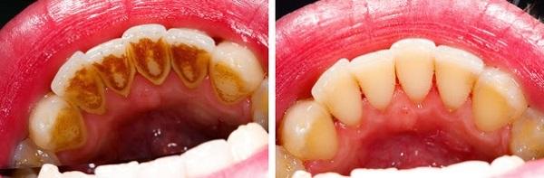 hiện tượng chảy máu chân răng 4