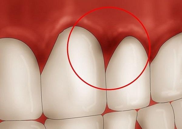 biểu hiện của bệnh viêm chân răng