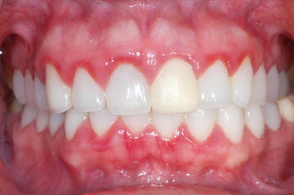 biểu hiện của bệnh viêm chân răng 2