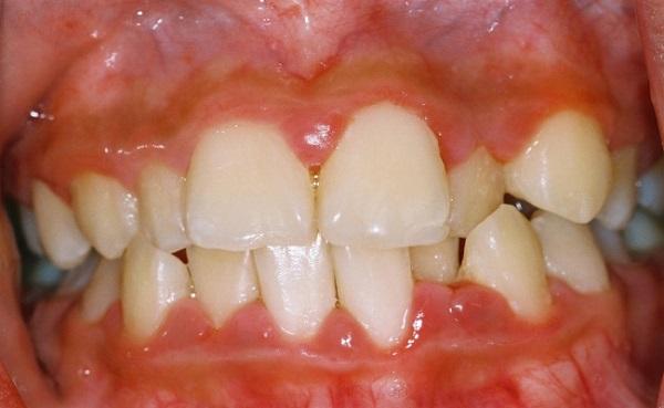 viêm chân răng