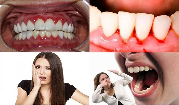 viêm chân răng 2