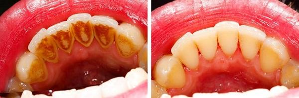 viêm chân răng 3