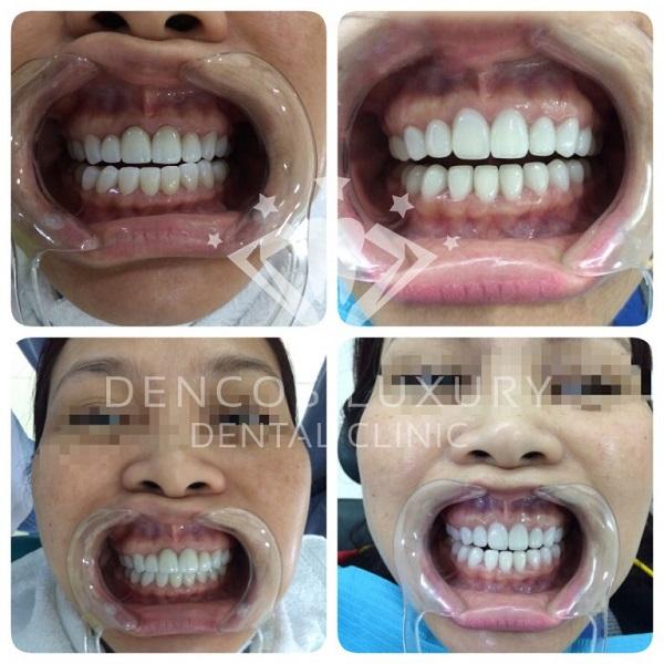 quy trình bọc răng sứ 6