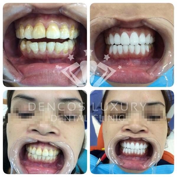 quy trình bọc răng sứ 8