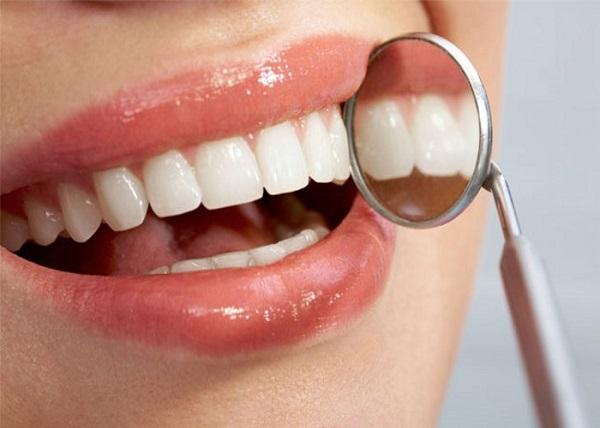 bọc răng là gì 5