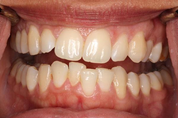 bọc răng sứ mất bao lâu 4