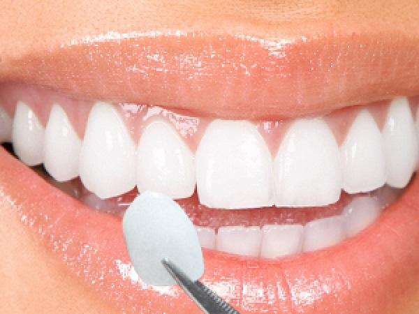 bọc răng sứ sử dụng được bao lâu 3