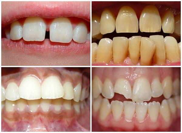 bọc răng sứ titan 2