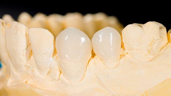 bọc răng sứ titan 3