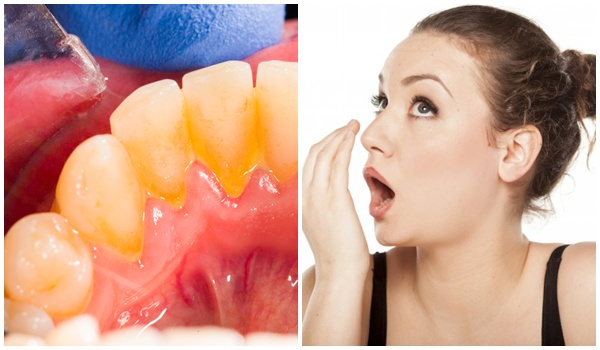 cao răng có gây hôi miệng