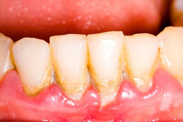 cao răng có gây hôi miệng 2