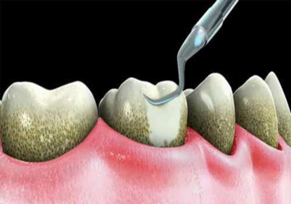 cao răng có gây hôi miệng 3