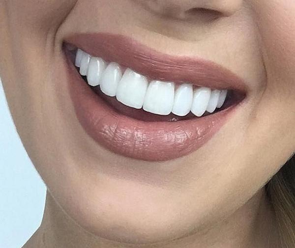 chụp răng sứ ở đâu tốt nhất hà nội 2