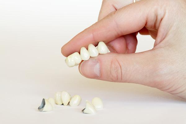 có nên bọc răng sứ