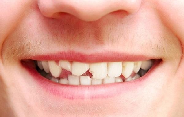 làm răng sứ 2