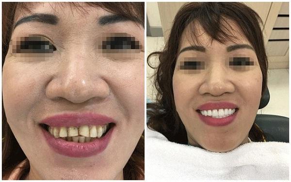 làm răng sứ 3