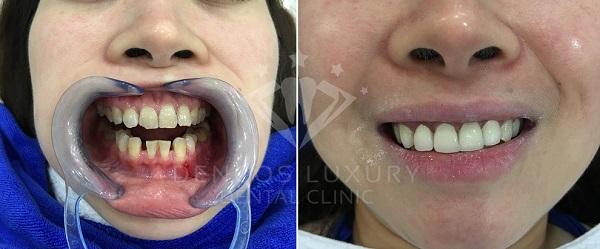 làm răng sứ 4