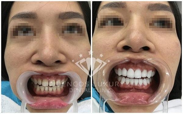 làm răng sứ 5