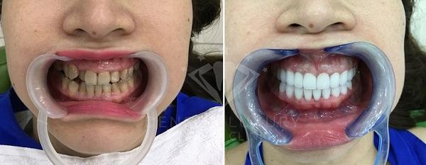 làm răng sứ 7