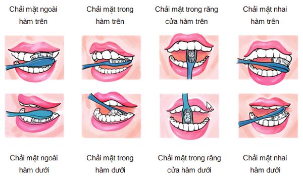 lấy cao răng bằng phương pháp tự nhiên 7